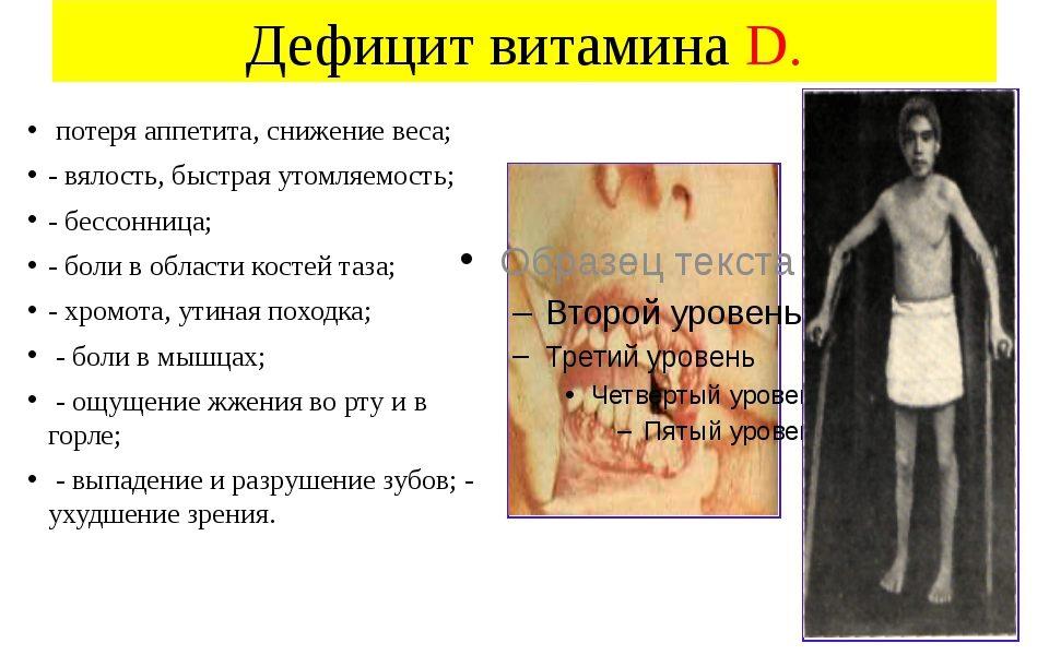 Последствия отсутствия витамина D