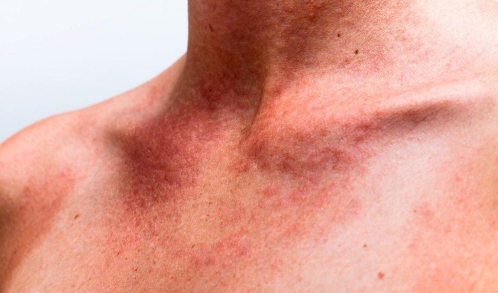 Аллергические реакции на солнце